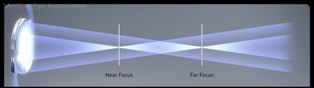 Multifocal Lens Explained.